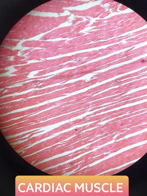 cardiac muscle histology slide for 1st year mbbs