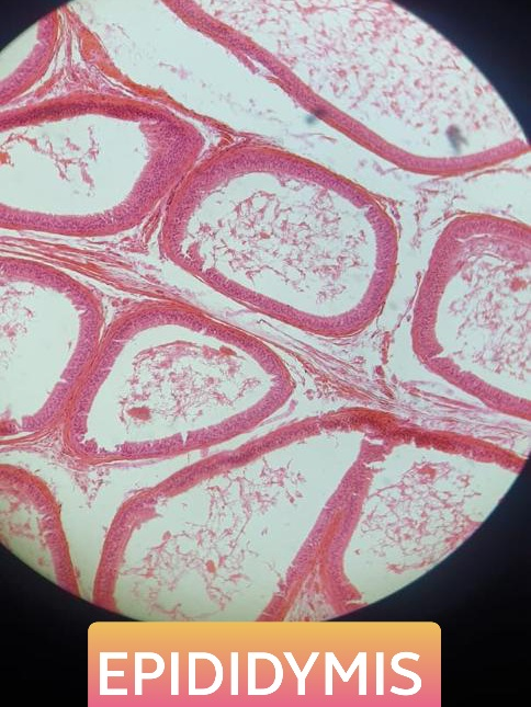 epididymis histology slide for mbbs 1st year