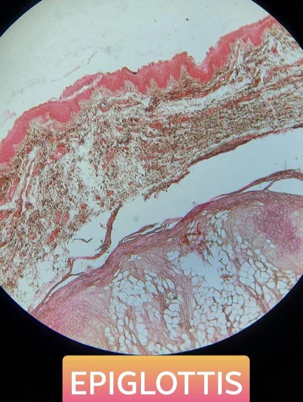 epiglottis histology slide for mbbs 1st year