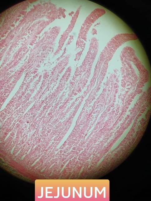 jejunum histology slide for mbbs 1st year