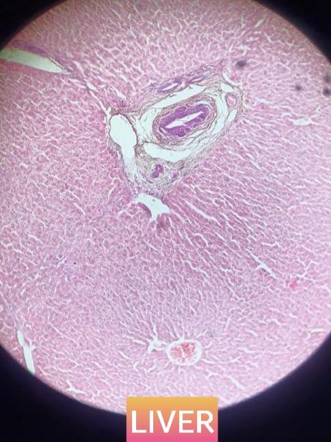 liver histology slide for mbbs 1st year