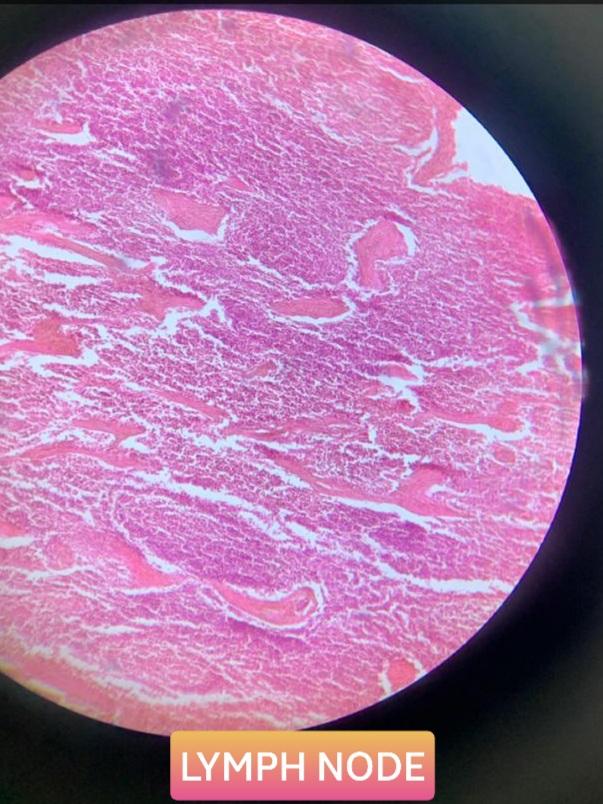 lymph node histology slide for mbbs 1st year