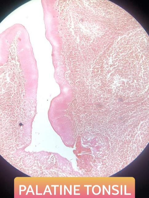 palatine tonsil histology slide for mbbs 1st year