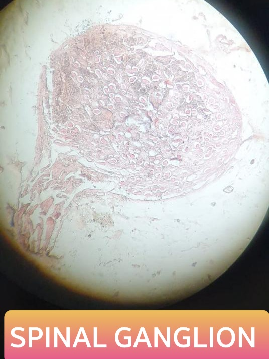 spinal ganglion histology slide for 1st year mbbs