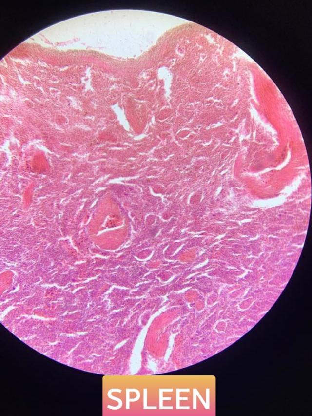 spleen histology slide for mbbs 1st year