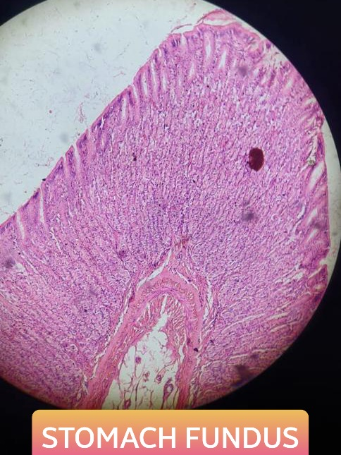 fundus of stomach histology slide for mbbs 1st year
