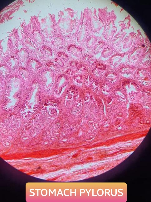 pylorus of stomach histology slide for mbbs 1st year