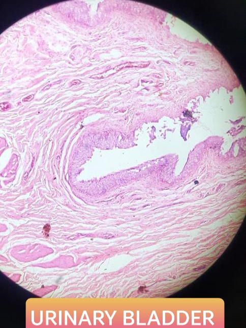urinary bladder histology slide for mbbs 1st year