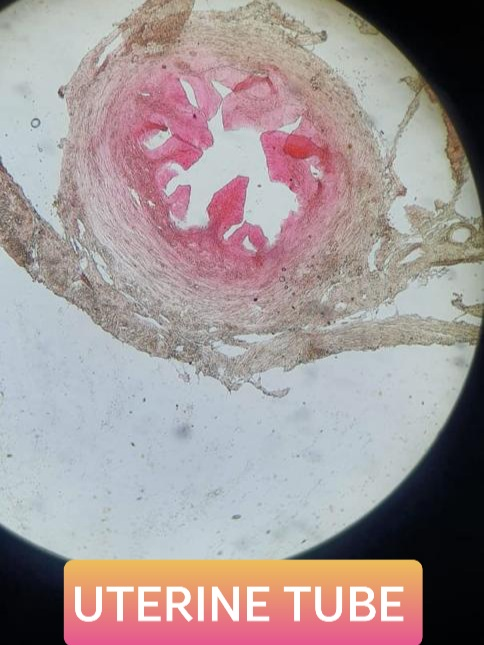 uterine or fallopian tube histology slide for mbbs 1st year